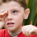 О чем говорят красные круги под глазами? Как убрать покраснения кожи?