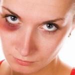 Как быстро вывести синяк под глазом? 7 проверенных способов