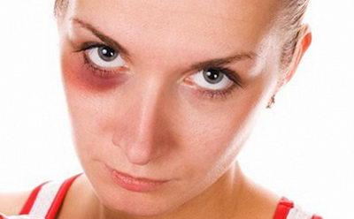 Как быстро вывести синяк под глазом: рецепты, средства, способы