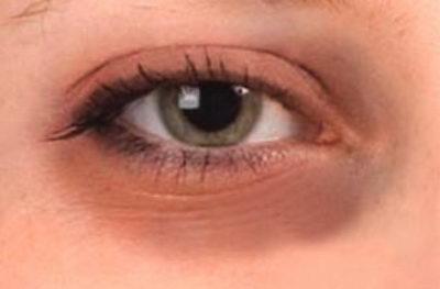 Как убрать черные круги под глазами? Ведь это не всегда задумка визажиста - это следствие усталости и плохого здоровья