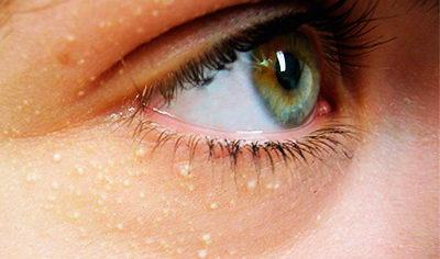 Как убрать жировики под глазами: методы лечения дома и больнице