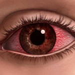 Причины покраснения глаз, что их вызывает и с чем это связано?