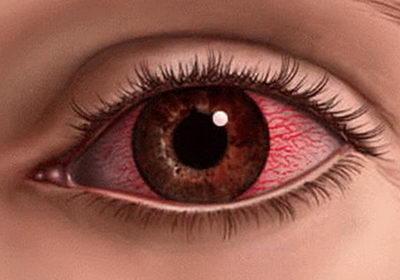 Причины покраснения глаз многочисленны, даже вода в душе или бассейне может вызвать воспаление