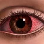 Покраснение белков глаз – как не стать зомби?