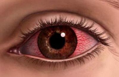 Покраснение белков глаз: причины, лечение, рекомендации