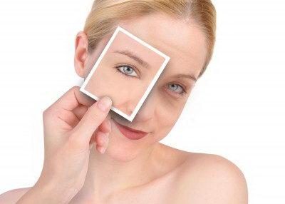 Мешки под глазами: причины, симптомы, народные средства лечения, профилактика