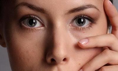 Как снять отёчность с глаз в домашних условиях 347