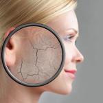 Как ухаживать за сухой кожей лица? Правила ухода