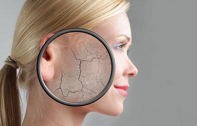 Как ухаживать за сухой кожей лица и обеспечить полноценное питание?