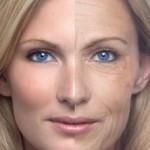 Процедура фотоомоложения – борьба со старением кожи