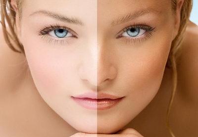 Улучшение цвета лица возможно в домашних условиях