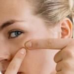 Почему появляются жировики под глазами, как от них избавиться?