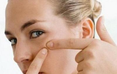 Жировики под глазами: причины, лечение, профилактика