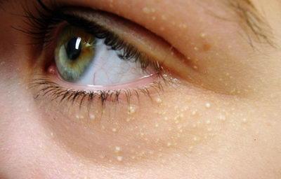 Так выглядят жировики у глаз: фото