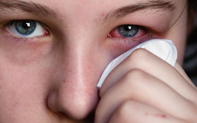 Воспаление глаз: причины, признаки, лечение