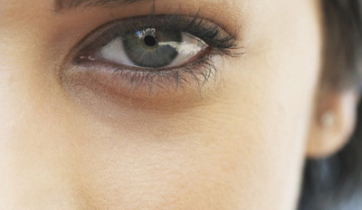 Как убрать темные круги под глазами дома и в салоне?