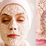 Маски для сухой кожи в домашних условиях – заряд лица красотой