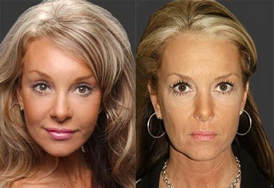 Фото круговой подтяжки лица до и после