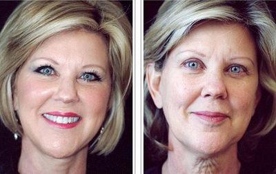 Круговая подтяжка лица до и после