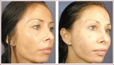 Лазерная шлифовка лица: фото до и после