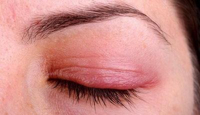 Воспаление век: симптомы и лечение блефарита