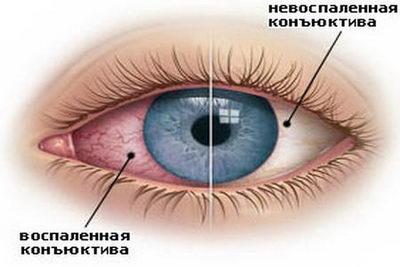 Что такое конъюнктивит глаз?