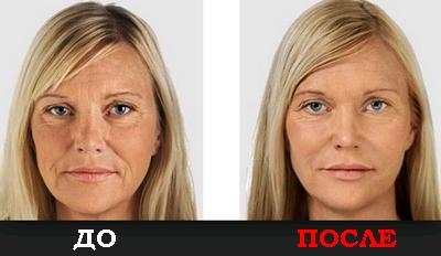 Лифтинг-сыворотка до и после
