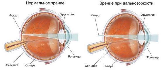 Нормальное зрение и при дальнозоркости