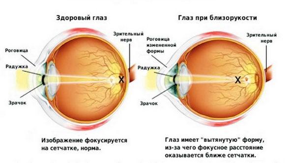 Здоровый глаз и при близорукости