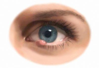 Почему появляется ячмень на глазу у взрослых и детей?