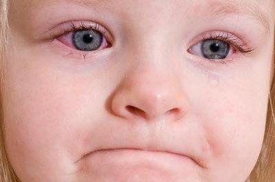 Покраснение белков глаз у ребенка