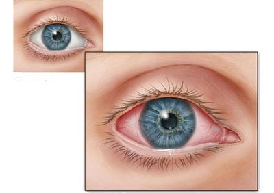 Здоровый глаз и глаз с воспаленной или раздраженной конъюнктивой