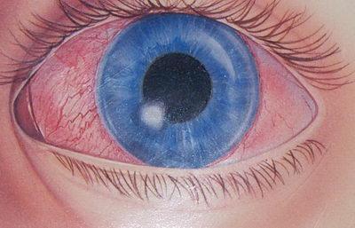 При воспалении роговицы наблюдается помутнение оболочки глаза
