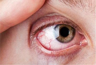 Чем вызвано воспаление роговицы?