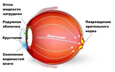 Развитие и диагностика глаукомы