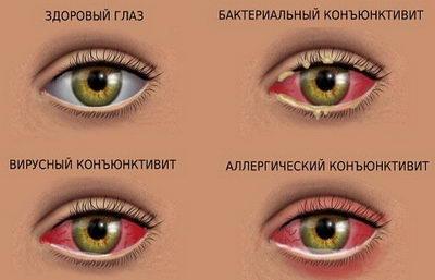 Виды конъюнктивита