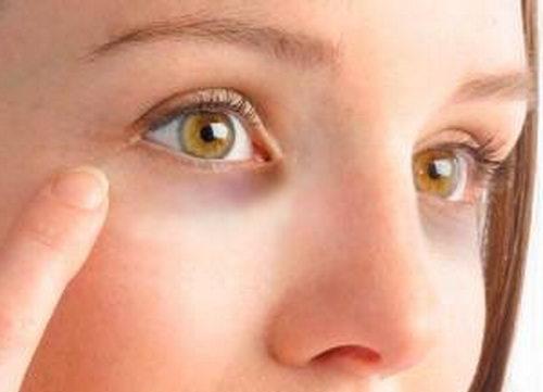 Темные круги - распространенная проблема с кожей глаз