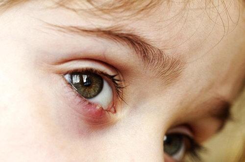 Чем лечить ячмень на глазу у ребенка? Капли и мази