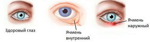 Как выглядит ячмень на глазу?