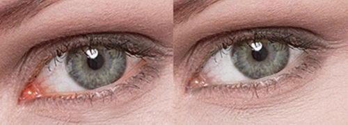 Капли Иридина до и после