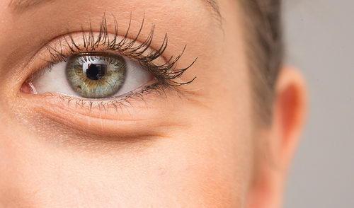 Почему образуются мешки под глазами и что с ними делать?