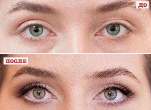 До и после макияжа глаз для нависшего века