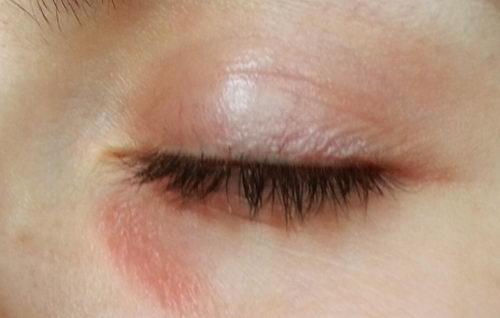 Почему шелушится кожа вокруг глаз, в чем причина?
