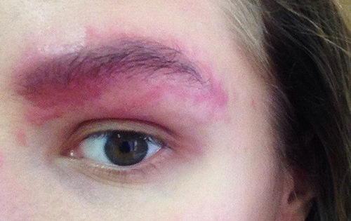 Аллергия на бровях