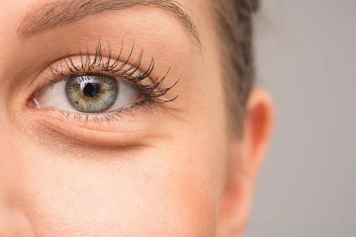Как подобрать средство от темных кругов под глазами?