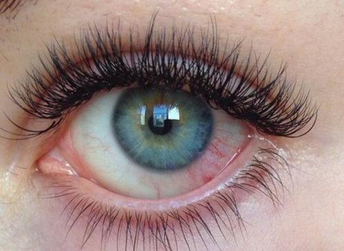 Микротравма глаза