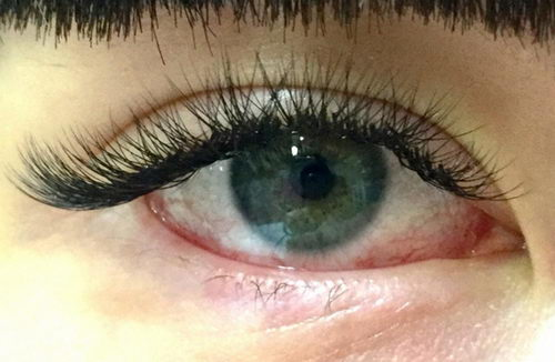 Ожог глаз при наращивании ресниц