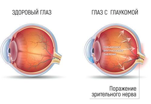Поражение зрительного нерва при глаукоме