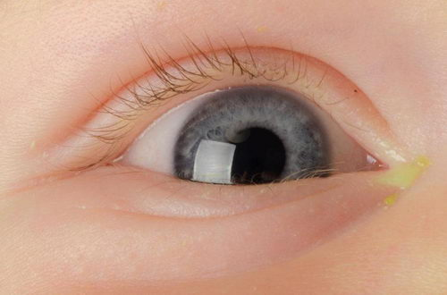 Как выглядят гнойные выделения на глазах ребенка?