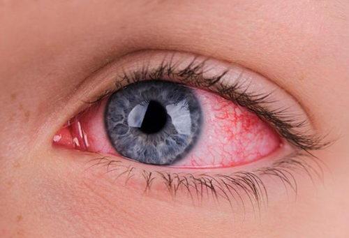 Почему появляются красные глаза?